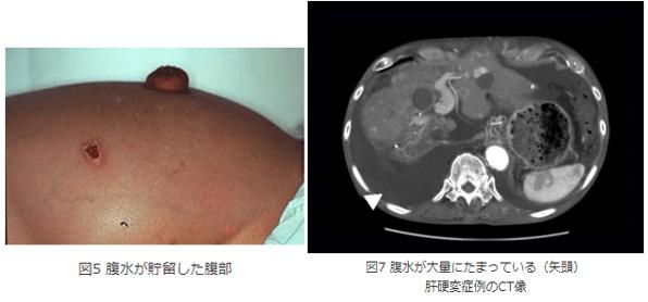 腹水の症例写真