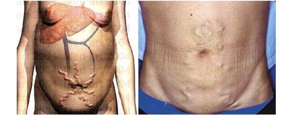 肝硬変による腹壁静脈拡張症例写真とCG画像