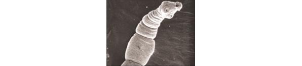 エキノコックス(多包条虫)の顕微鏡写真
