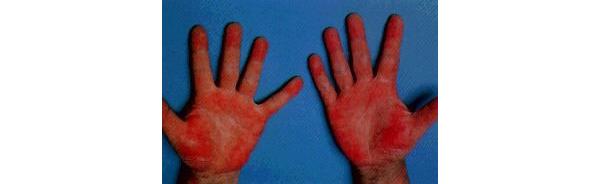 手掌紅班の症例写真