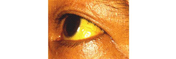 肝硬変による黄疸症例写真