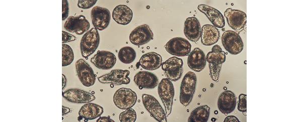 エキノコックス(寄生虫卵)の顕微鏡写真