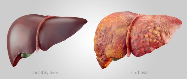 健康な肝臓と肝硬変の肝臓