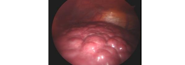 肝硬変の肝臓の腹腔鏡写真