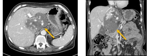 肝血管腫の造影CT写真