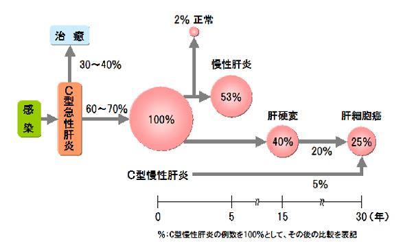 肝炎ウイルスの感染からの肝疾患の推移