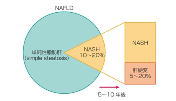 NAFLDの予後画像