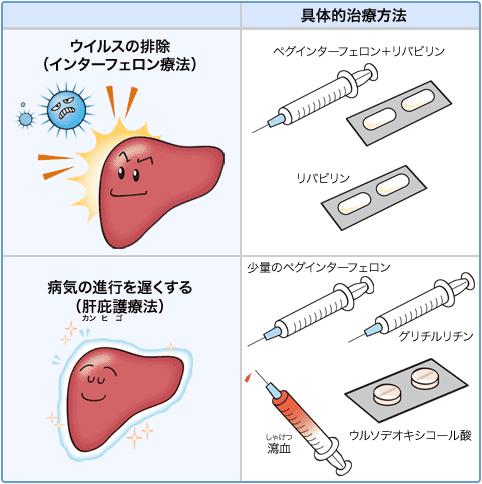 C型肝炎の治療方法、ウイルス排除と肝庇護療法